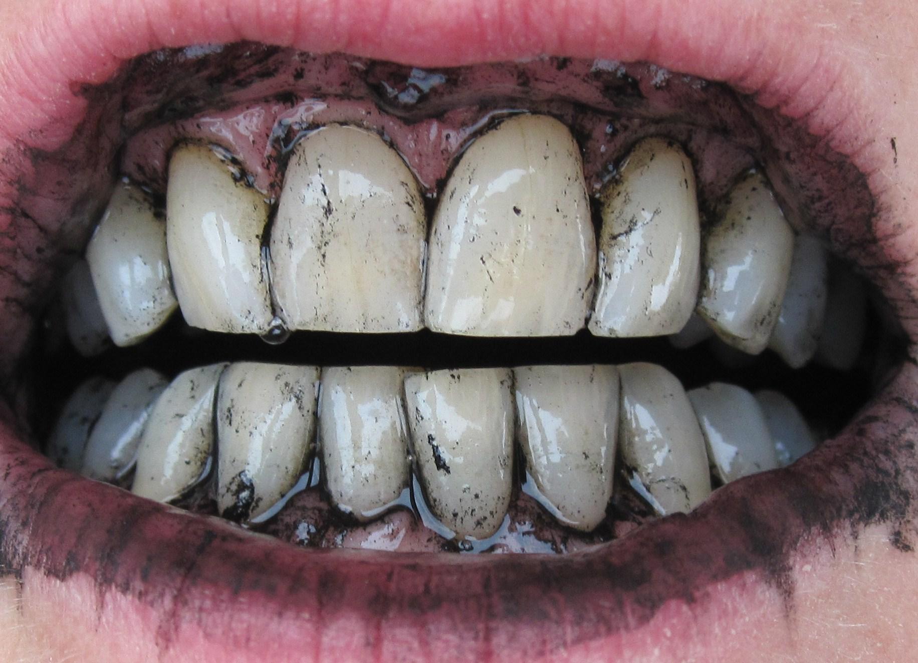 отбеливание пломбированных зубов в домашних условиях